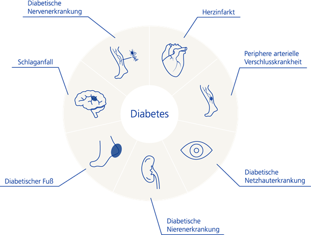 2018-07-24 Diabetes Folgeprobleme laut Zurich Research